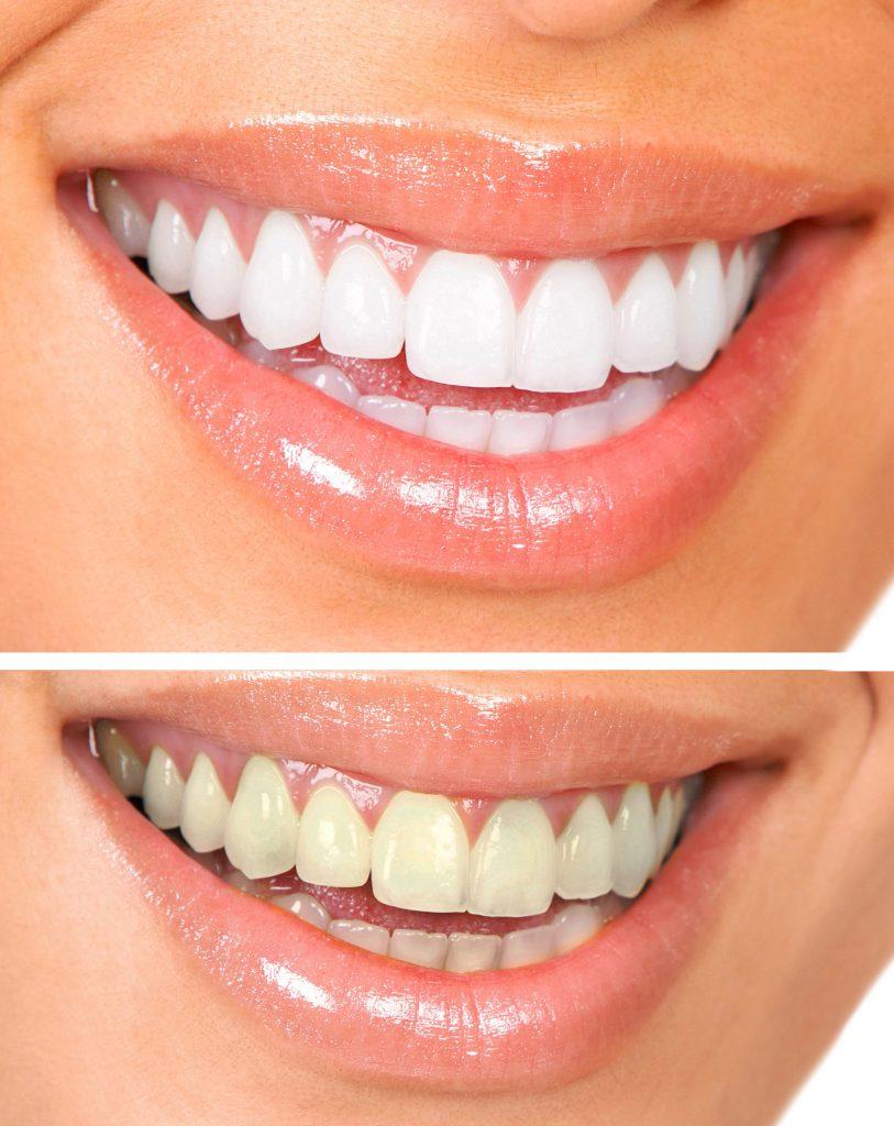 Teeth Whitening Ashburn