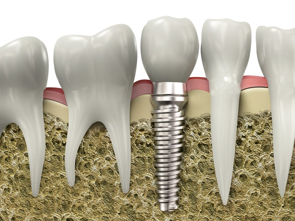 Leesburg Dental Implants